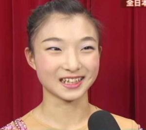 坂本花織選手の矯正前画像