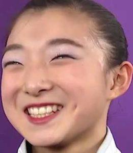 坂本花織選手の矯正後画像